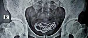 X-ray Phone Cord in Bladder